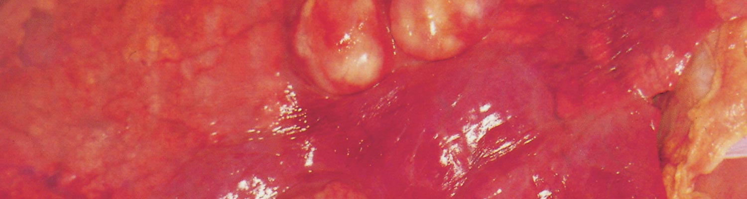 Rhodococcus equi infections