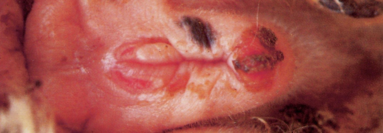 Vulvovaginitis DISEASE COMPLEX...